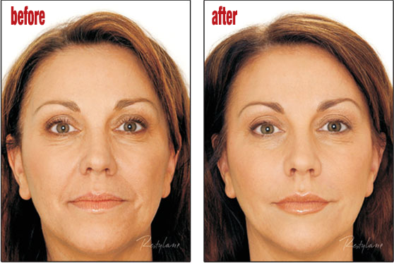 Facial Fillers | Before and After Pictures