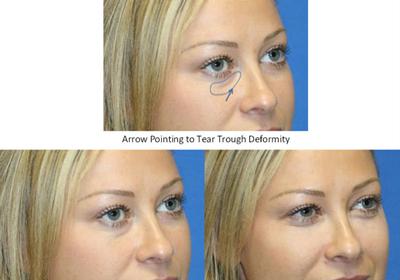 Lower Eyelid Fillers