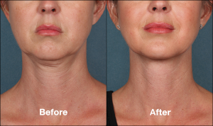 Kybella | Before & After | Treatment for Double Chin