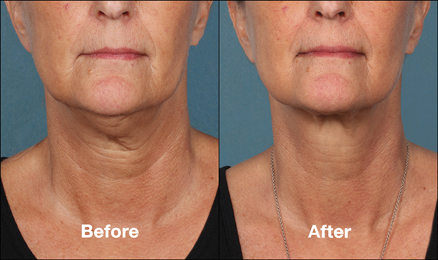 Treat Double Chin with Kybella